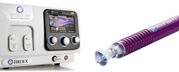 Innovative Glaucoma Therapy System Now Available